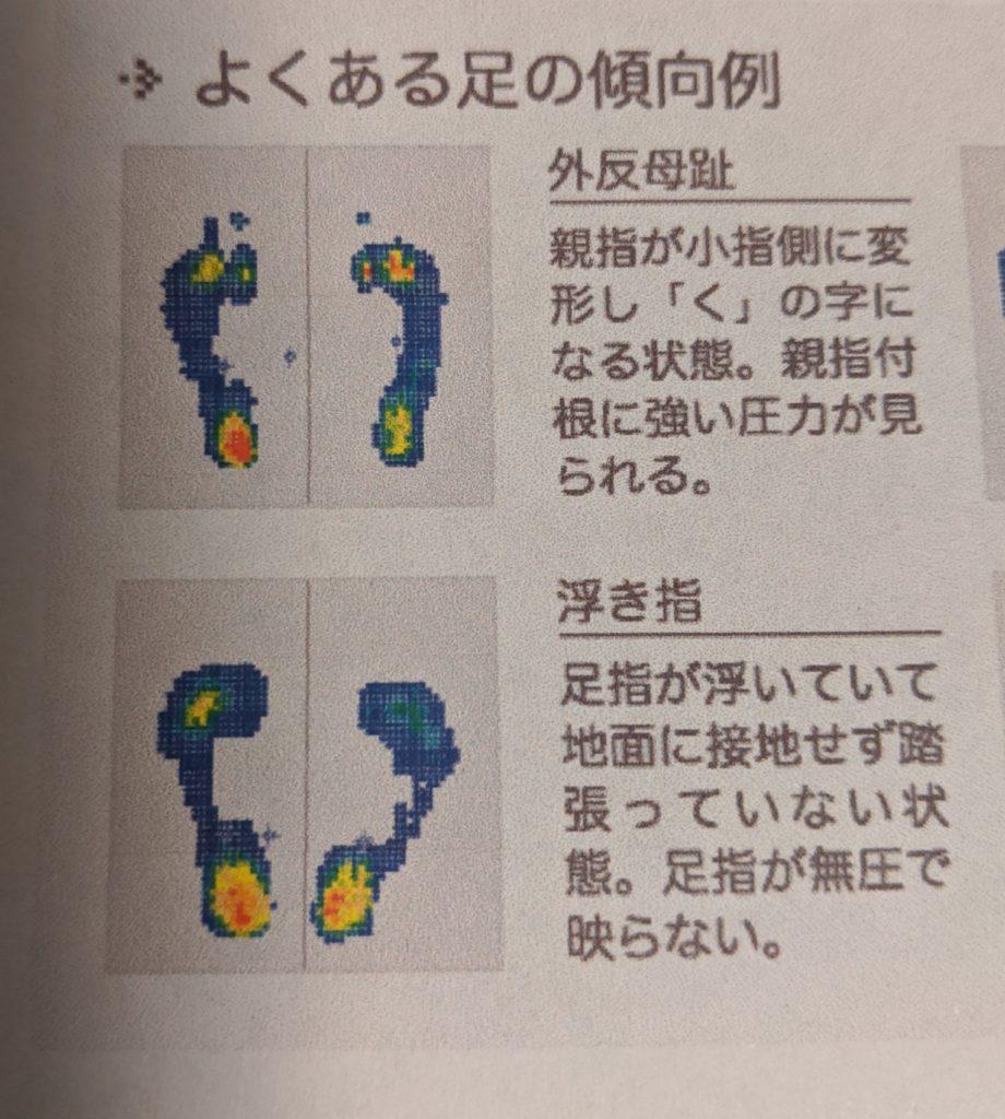浮き指の足の状態